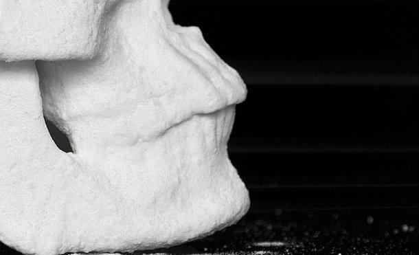 mens-schedel-beeld-4